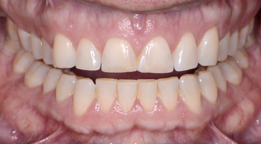Vero Beach Microthin Veneers Dentist