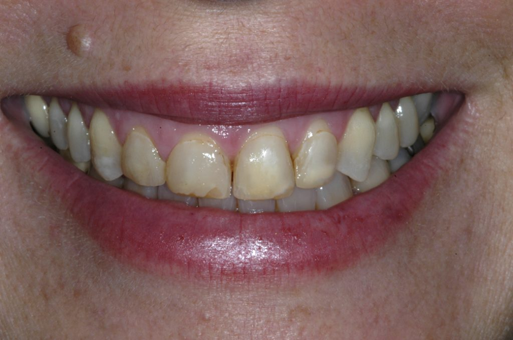 Vero Beach Porcelain Veneers Dentist