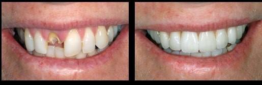 Vero Beach Implant Dentist